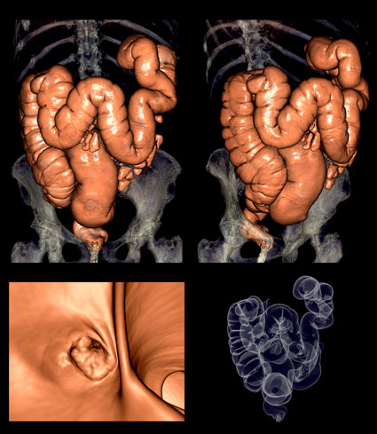 Cancer de colon que sintomas tiene, Cancer de colon en sintomas. Sintomas de cancer de colon rectal