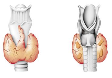 3.000 nuevos cánceres de tiroides al año
