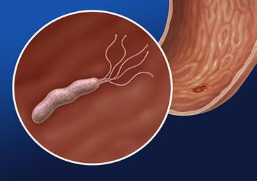 Probióticos para la erradicación del Helicobacter pylori