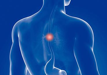 CMED realiza con éxito una cirugía de cáncer de esófago con abordaje mínimamente invasivo