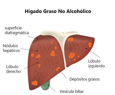 CMED - El hígado graso empeora tras los excesos del verano p