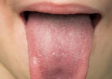 Existen más de 80 causas que pueden provocar halitosis