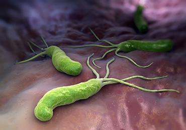La bacteria Helicobacter pylori puede ser responsable de la aparición de halitosis