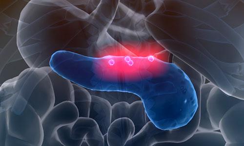 El tabaco, uno de los principales factores de riesgo del cáncer de páncreas