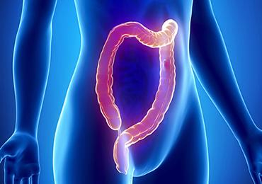 A vueltas con el colon irritable