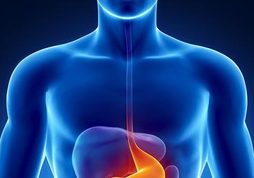 Síntomas, causas y tratamientos del reflujo gastroesofágico