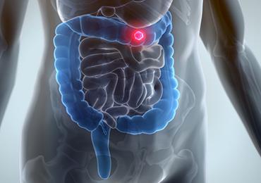 Relación entre la alimentación y el aumento de la predisposición de desarrollar un cáncer