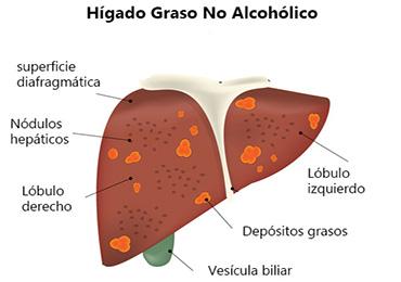 Dieta para reducir el hígado graso