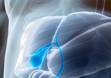 Lo que comemos influye en la formación de cálculos biliares y de riñón