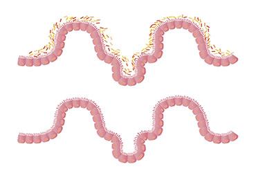 La microbiota es capaz de hacerte más fuerte frente a las infecciones