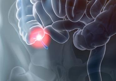 ¿La apendicitis puede confundirse con otra enfermedad?